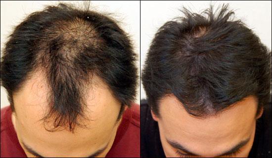Les salons de coiffure le traitement des cheveu