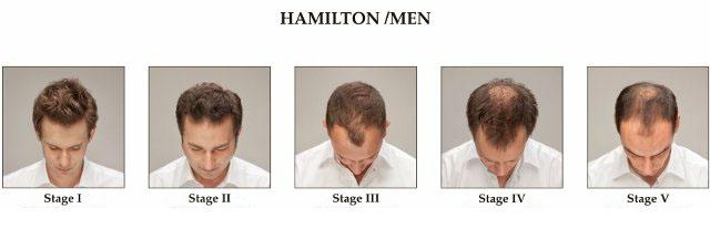 La calvitie masculine monsieur calvitie for Perte de cheveux homme
