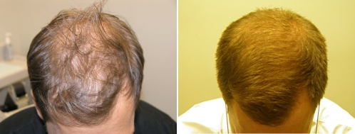 Le masque pour les cheveux avec le miel par lhuile et les vitamines