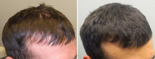 Lakme le shampooing contre la chute des cheveux les rappels