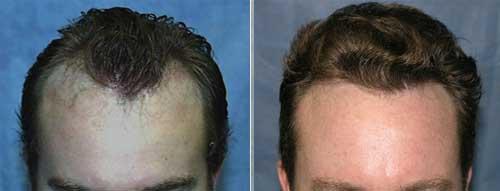 methode fue greffe cheveux