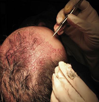 Les rappels sur les masques les plus effectifs contre la chute des cheveux