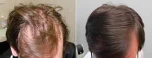 Les cheveux gras quel moyen sont
