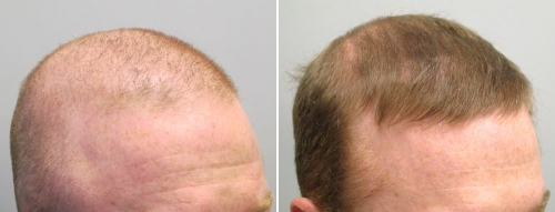 rogaine before and after pictures