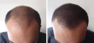 photo avant/après