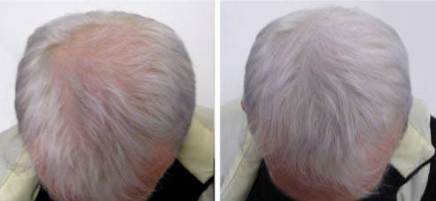 Traitement pour la repousse des cheveux apres chimio